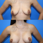 Lollipop Breast-Lift with implants
