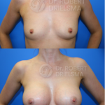 Breast-Augmentation