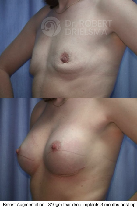 Boob Job Breast Enhancements