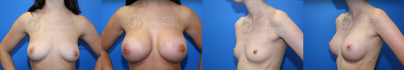 breast augmentation before and after photo gallery