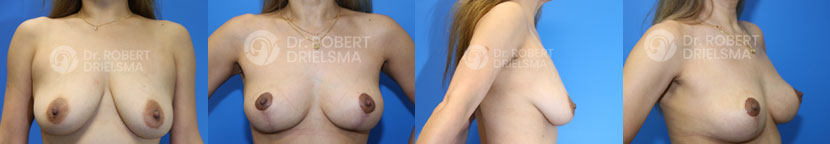 Breast Lift Sydney Before and After Photo