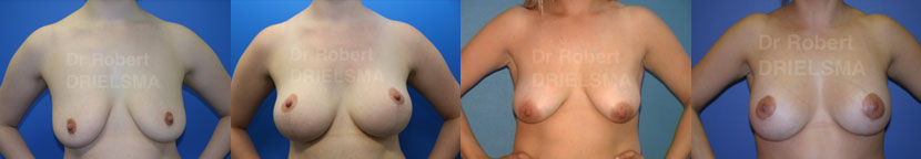 Breast Lift with Implants Sydney Before and After