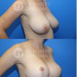 Lollipop breast reduction