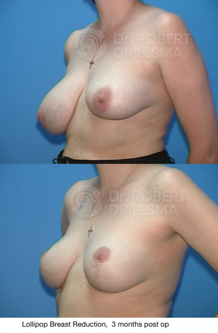 exercise after breast reduction