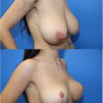 Breast-Reduction-Lollipop