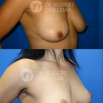 Lollipop-Breast-Lift-2a