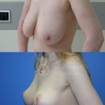 Lollipop-Breast-Reduction-Lift