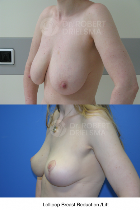 Breast Reduction Recovery Tips