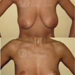 Lollipop-Breast-lift