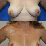 Lollipop-Breast-lift-8b