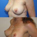 Lollipop-Breast-lift-8b