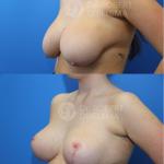 Lollipop-breast-reduction