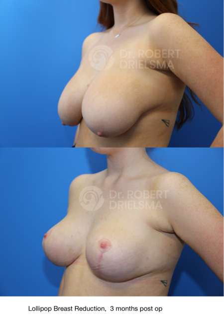 medicare cover breast reduction
