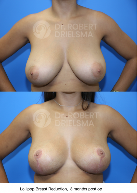 7 Things to Consider Before A Breast Reduction - breast reduction before and after from Dr Drielsma