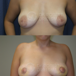 Inverted Nipple correction