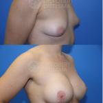 Tuberous Breast Correction