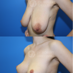 Lollipop Breast Lift