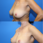 Lollipop Breast Reduction
